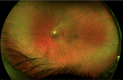 What Are Floaters? Massive and diffuse floaters color fundus and autofluorescence ( type 3) - better result with vitrectomy